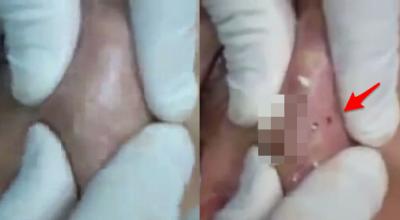 震撼!這到底是多少年「沒洗過臉?」網友們全嚇壞了!沒想到醫生才輕輕一壓,他的臉竟然就...