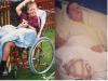 16歲他為了自由放棄一條腿…如今,這時尚圈裡最出名單腿男模,簡直帥!
