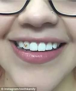 最近國外年輕人又開始流行給牙齒上貼東西了,這真不是牙縫裡的菜