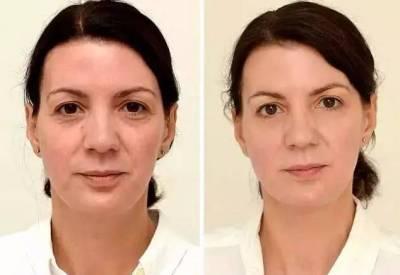 驚呆!女子試驗30天不喝飲料,臉上的變化嚇你一大跳!