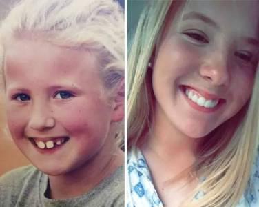 盤點36張「各種從鋼牙妹逆轉成為超正妹子」對比照片!原來「矯正牙齒」根本就是整形的一種!