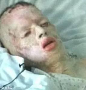 被強暴,被全身燒傷,他沉默多年,直到去世前,才終於道出了一切...
