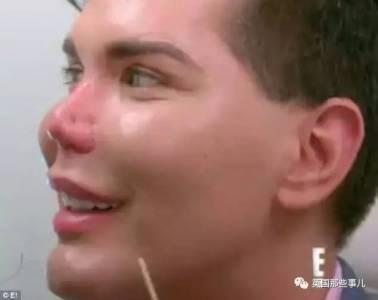 狂整五十多次 芭比男友的臉開始崩壞,哪怕只是微整,後果也遠比想象可怕