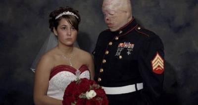 美國的士兵在戰場上被炸爛了臉,女友為了「愛」還是嫁給他,可是整場婚禮都沒露出笑容...