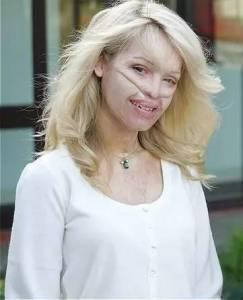 25歲毀容成怪物,左眼失明,31歲未婚生子,如今嫁對人的她卻美到爆!