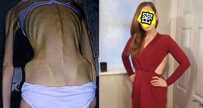 這名主婦一路「從107公斤變成4x公斤」甚至瘦成皮包骨隨時要暈倒,胖回來後「起死回生」正到讓人報名當她老公!