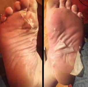 這個讓腳一層一層脫皮的足膜,網友們一邊忍著噁心一邊看,一邊又忍不住莫名酸爽...