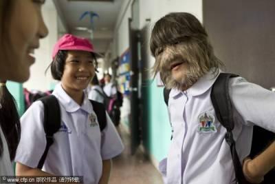 泰國女孩滿臉長毛進吉尼斯紀錄