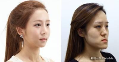 韓國「逆轉命運的整形」!搶救戽斗雙胞胎姊妹花!!
