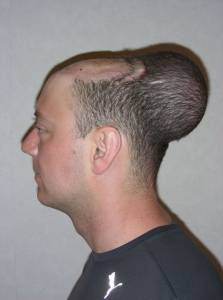 氣球療法?英禿男頭皮植入「氣球」 成功生髮重獲新生