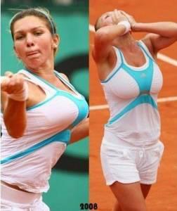 胸太大被迫做縮胸手術的十大女星