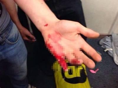 我在銳舞趴體上掉了根手指頭