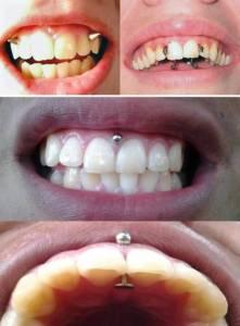 【慎入】十種極端的嘴部穿刺藝術!