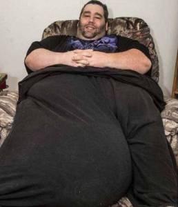 擠破褲子的不是脂肪,重達45公斤的「蛋蛋」!!!