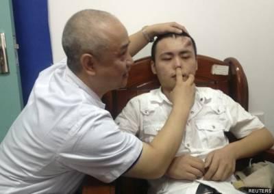 為了替換自己已感染變形的鼻子,於是種植在小伙子的額頭上......