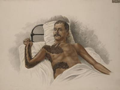 完整呈現那些過去的疾病繪圖!給藝術家們跪了......