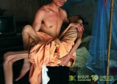 寺廟裡的晚期愛滋病人:觸目驚心,切莫邪淫!