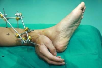 斷掌「寄養」腿上 1個月復活
