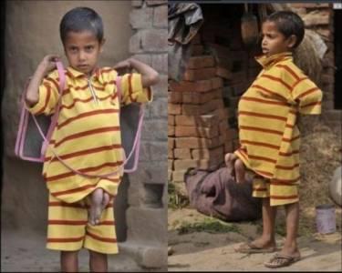 男孩被奉為神明,因為他的肚子長出了...