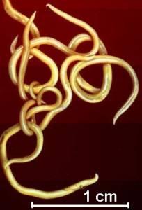 重口味慎入:六種可以寄生人體的寄生蟲