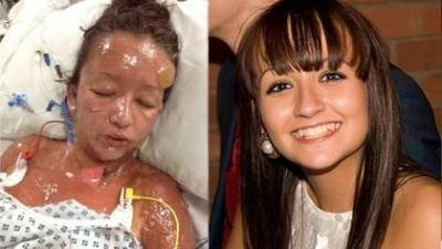 17歲少女藥物過敏 整張臉「溶掉」