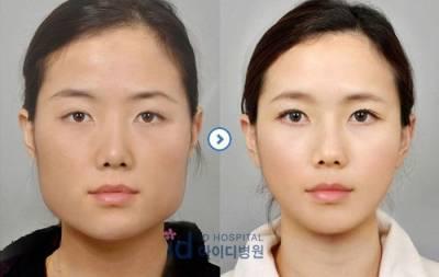 震驚世界!就像重新投胎一樣的韓國整容照 ,太強大!!