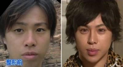 日本男子花了15萬美金,想整成米開朗琪羅的大衛