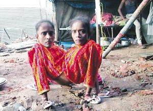 印度連體蜘蛛女嫁同一夫,擁有4條胳膊 3條腿 一隻肝臟和一副生殖器官....