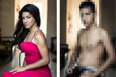 整形前整形後 變性男女手術前後!