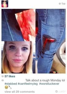 與小賈斯丁的親密接觸 流血也拍照po網…12張年輕人應該「適可而止」的照片