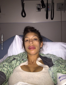 謎片女優推特公佈「完美唇部」整形照 粉絲們都徹底瘋了