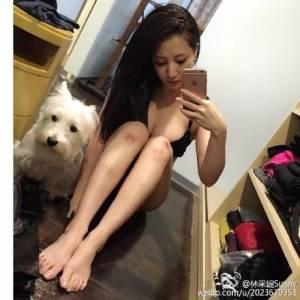 「女帝」林采緹自PO膝蓋瘀青照...網友遐想:「莫非是跟男友...」