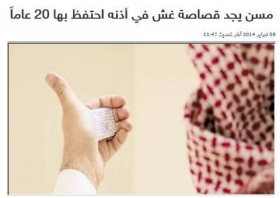 阿拉伯男子耳朵裡面塞小抄,竟保存20年