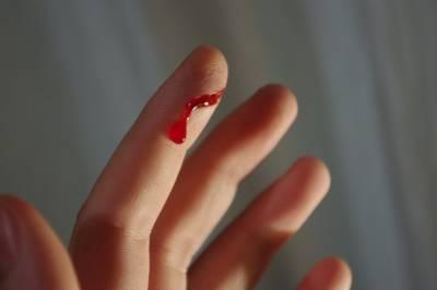 大解密!!被紙割到手指為什麼會那麼痛!?原來是因為紙張含有這種成份…