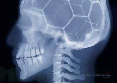 超特別 你絕對沒看過這樣的X光照片 第3張也太可愛了吧