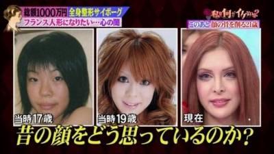 日本少女10萬美元整形 想變成法國洋娃娃