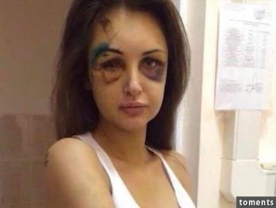 俄羅斯美女模特一夜之間變成殭屍!警察查出她的恐怖遭遇後...讓所有人都嚇壞了!