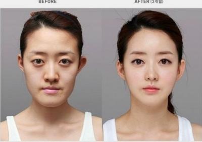 韓國人沒有極限!讓你下巴掉下來的整容前後對比
