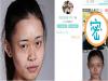 女大學生自曝整容日記!迅速竄紅網路!震驚整個亞洲!