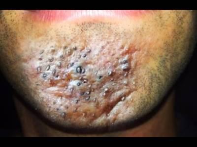 史上最噁令人頭皮發麻的擠痘痘影片!!!黑頭粉刺!褥瘡!
